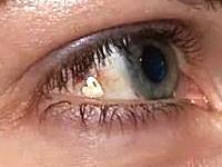 マジキチ。ファッションで眼球にプラチナを埋め込む女性がいるらしい。手術動画。